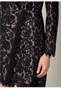 Alternate View Lace Coat Dress